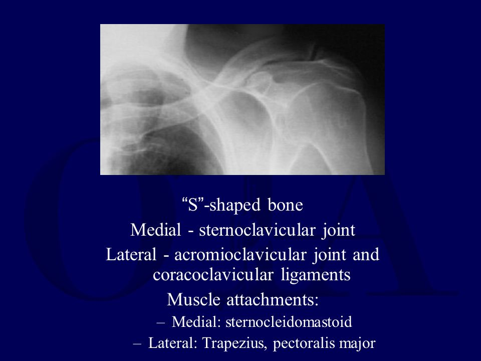 Clavicle S -shaped bone Medial - sternoclavicular joint