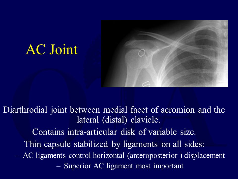 AC Joint Diarthrodial joint between medial facet of acromion and the lateral (distal) clavicle. Contains intra-articular disk of variable size.