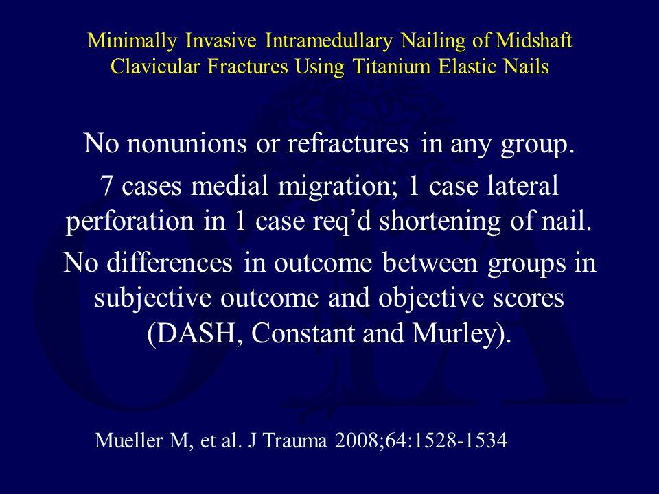 Minimally Invasive Intramedullary Nailing of Midshaft Clavicular Fractures Using Titanium Elastic Nails