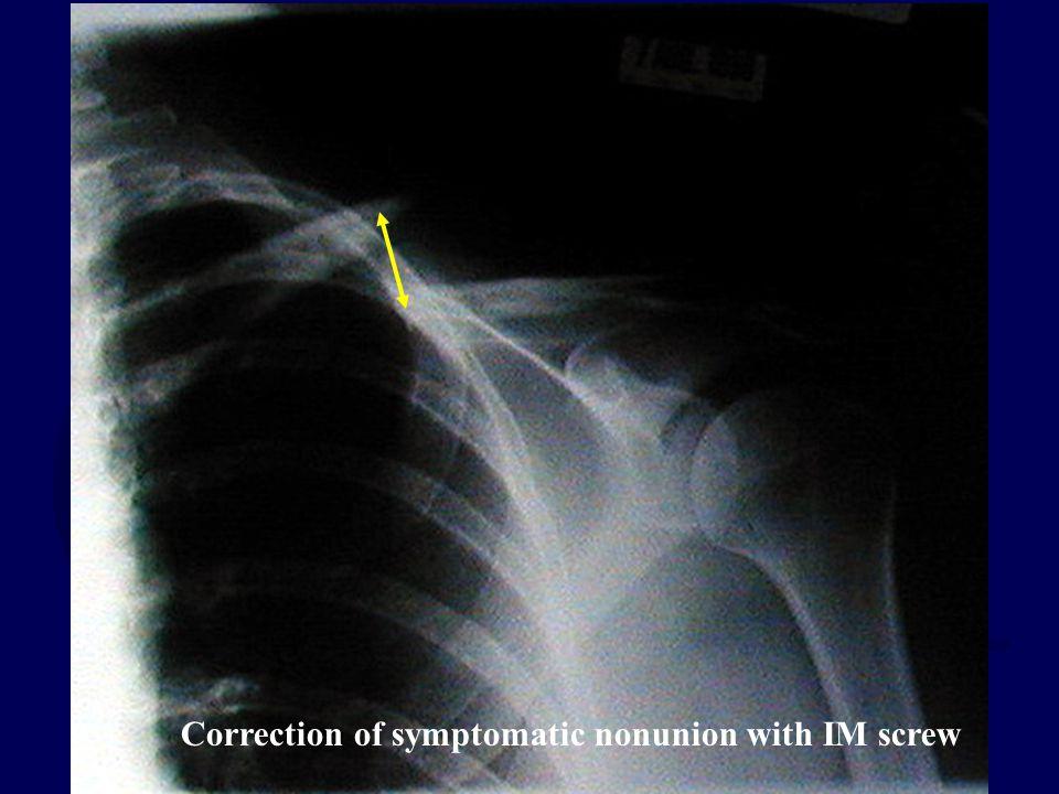 Correction of symptomatic nonunion with IM screw