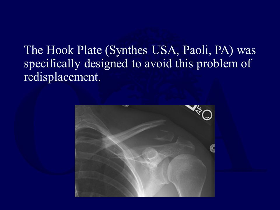 The Hook Plate (Synthes USA, Paoli, PA) was specifically designed to avoid this problem of redisplacement.