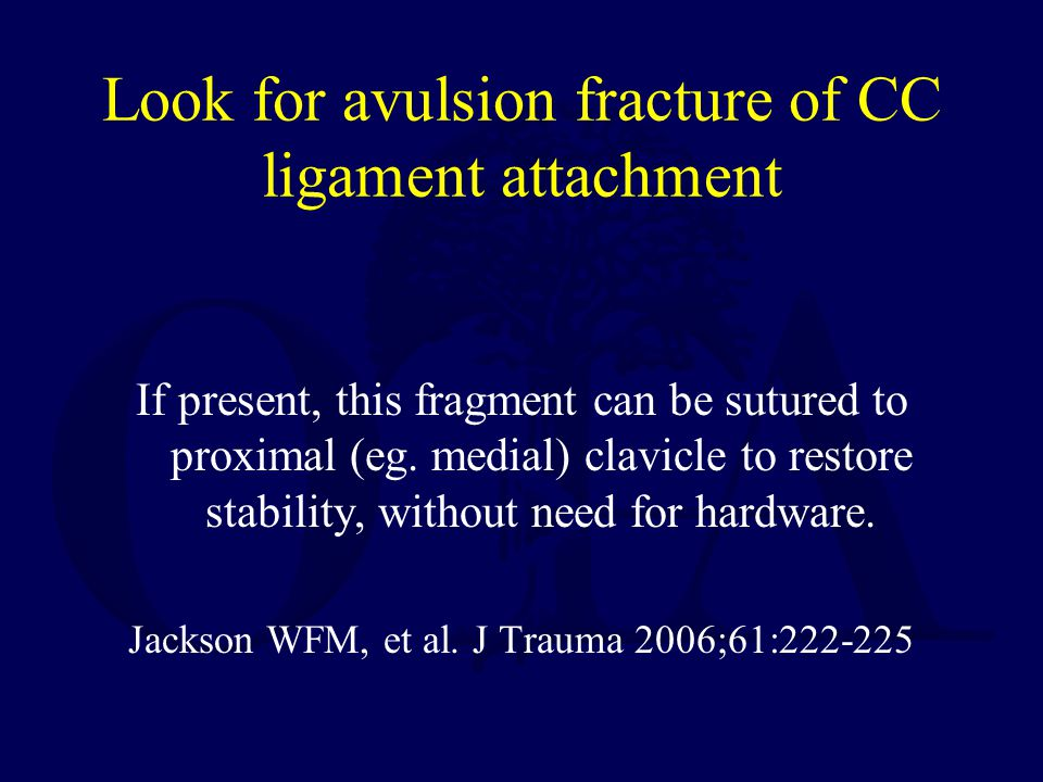 Look for avulsion fracture of CC ligament attachment