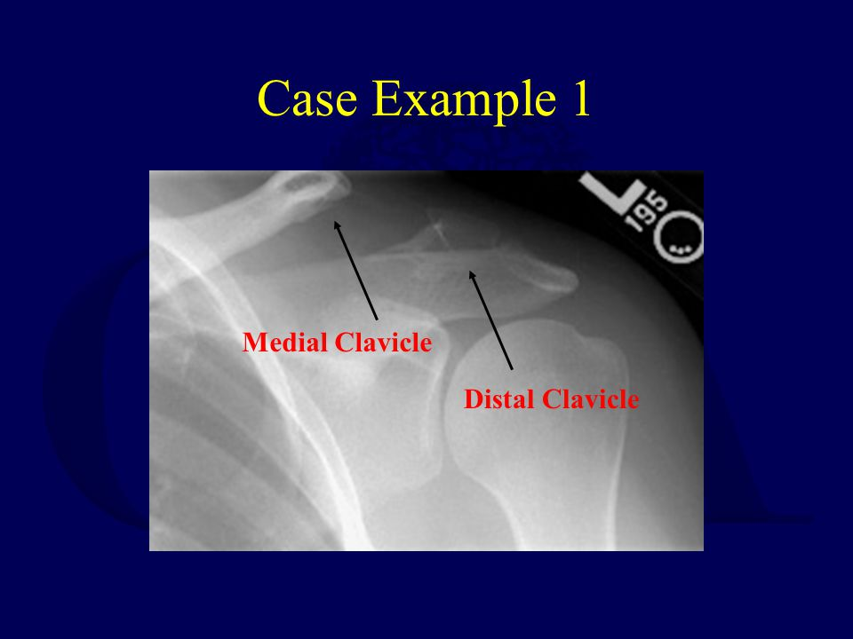 Case Example 1 Medial Clavicle Distal Clavicle