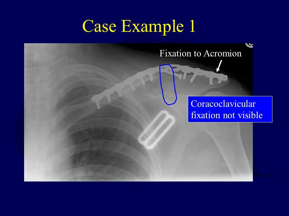 Case Example 1 Fixation to Acromion
