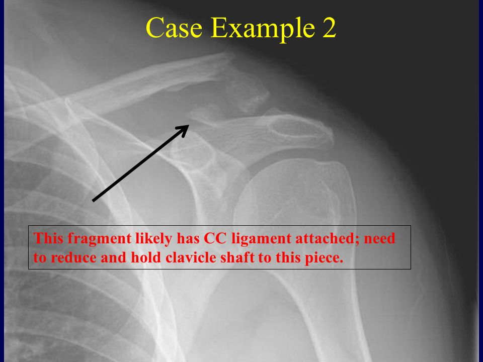 Case Example 2 This fragment likely has CC ligament attached; need to reduce and hold clavicle shaft to this piece.