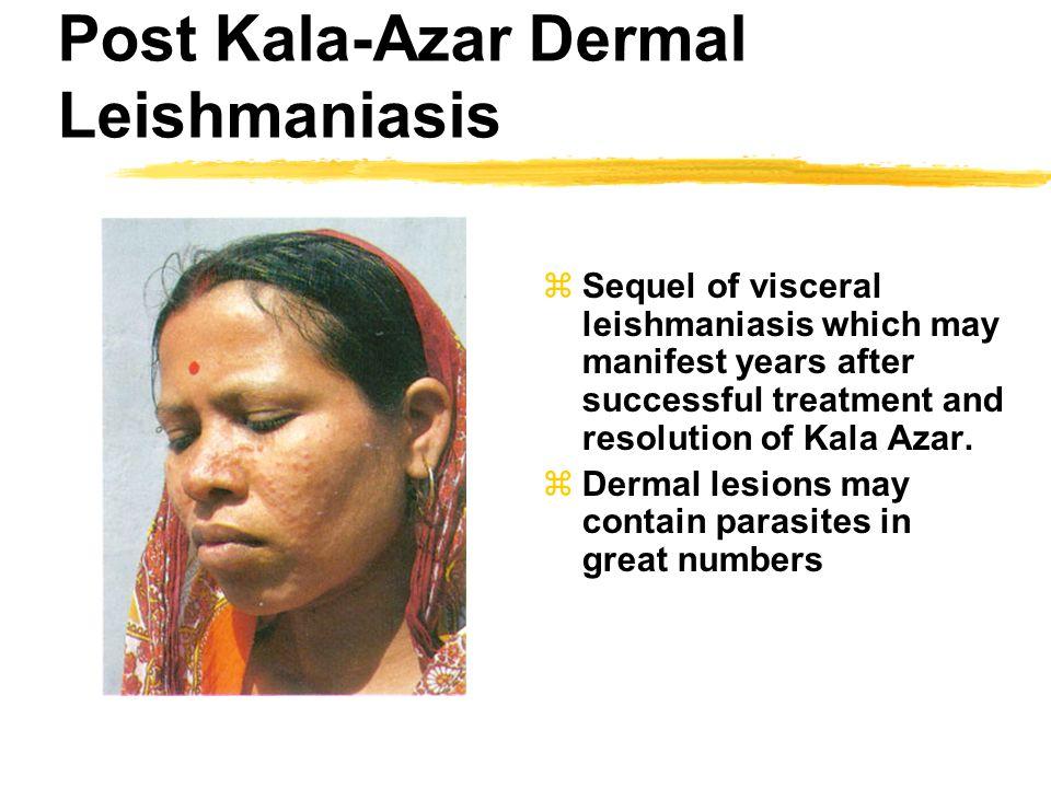 Post Kala-Azar Dermal Leishmaniasis