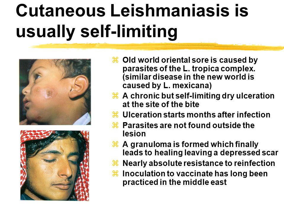 Cutaneous Leishmaniasis is usually self-limiting
