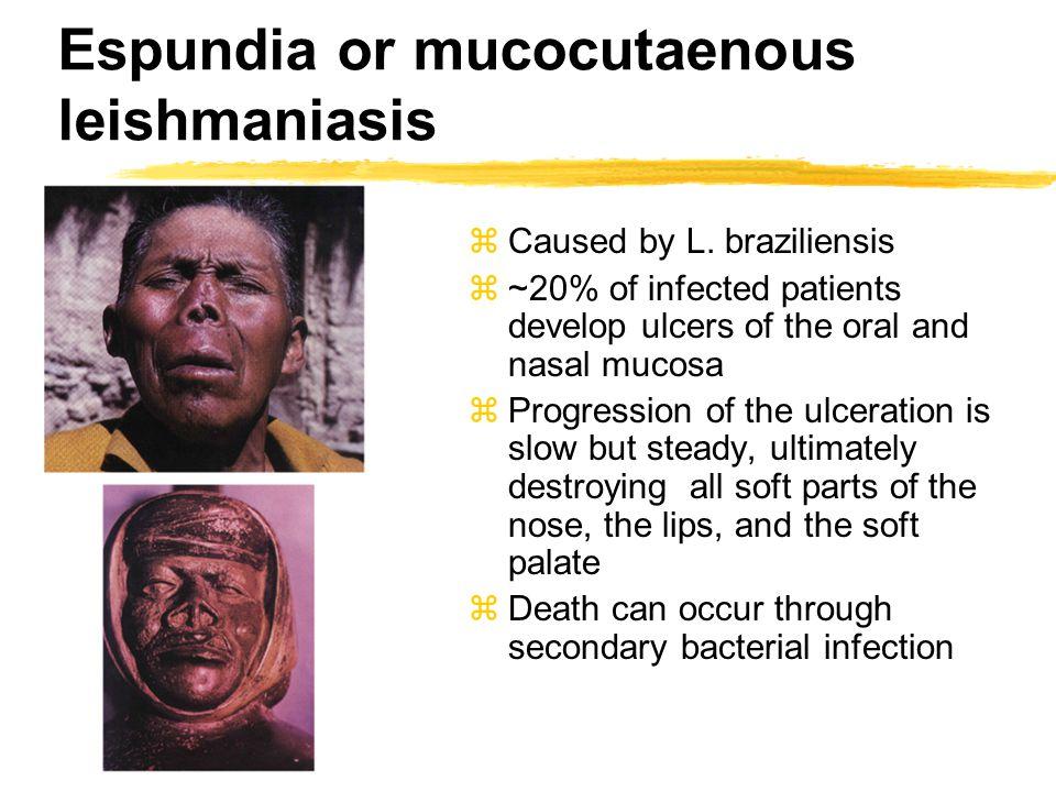 Espundia or mucocutaenous leishmaniasis