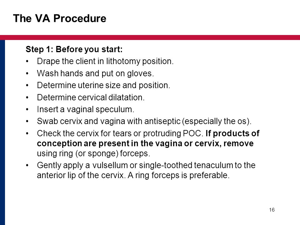 The VA Procedure Step 1: Before you start: