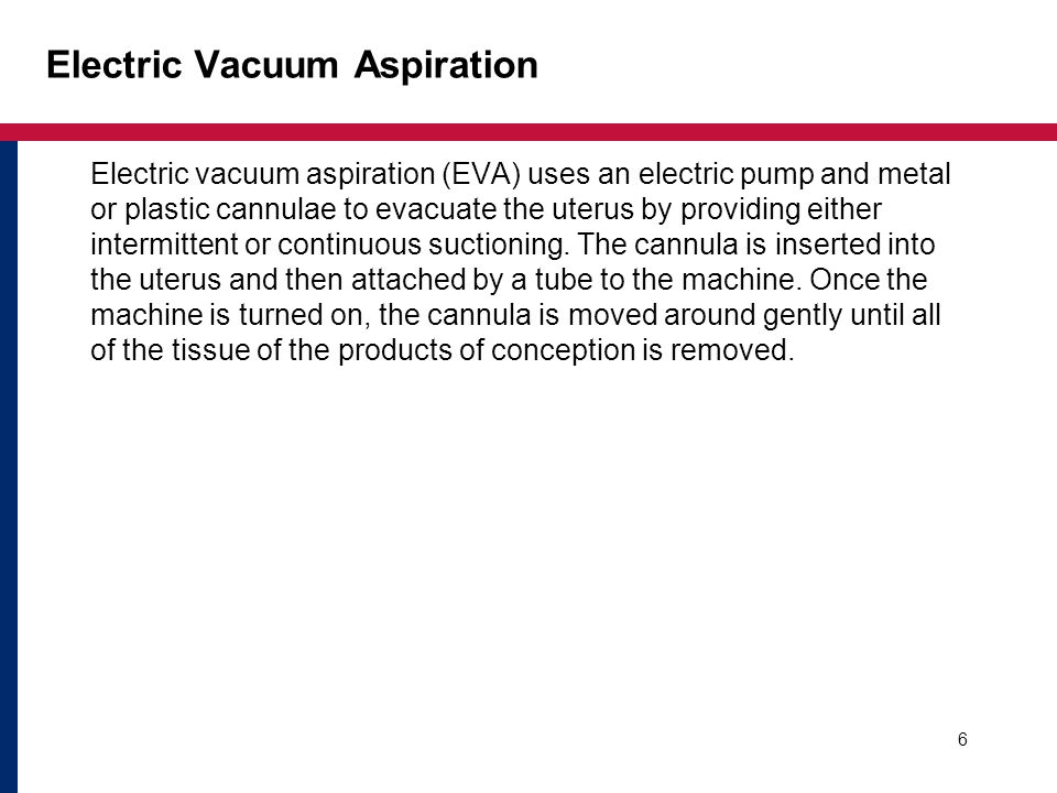 Electric Vacuum Aspiration