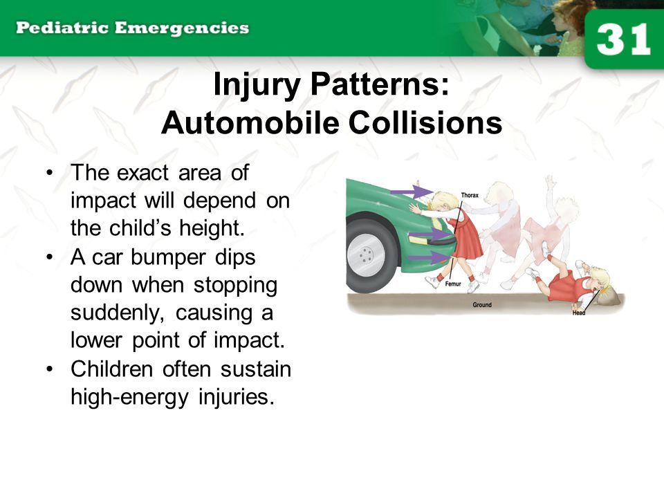 Injury Patterns: Automobile Collisions