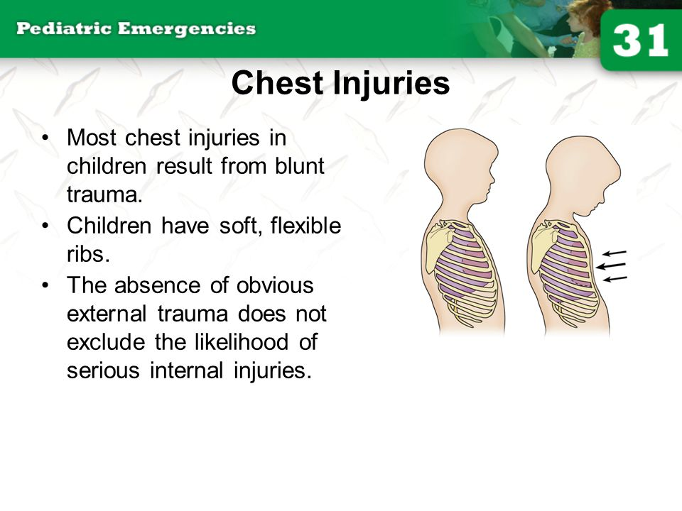 Chest Injuries Most chest injuries in children result from blunt trauma. Children have soft, flexible ribs.