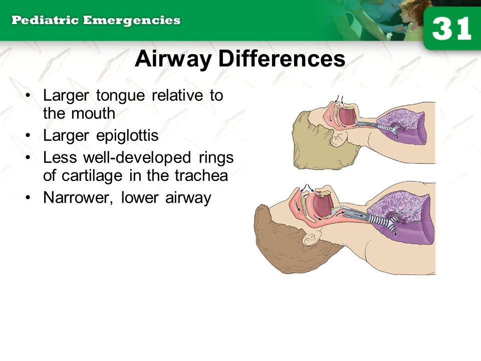 Airway Differences Larger tongue relative to the mouth