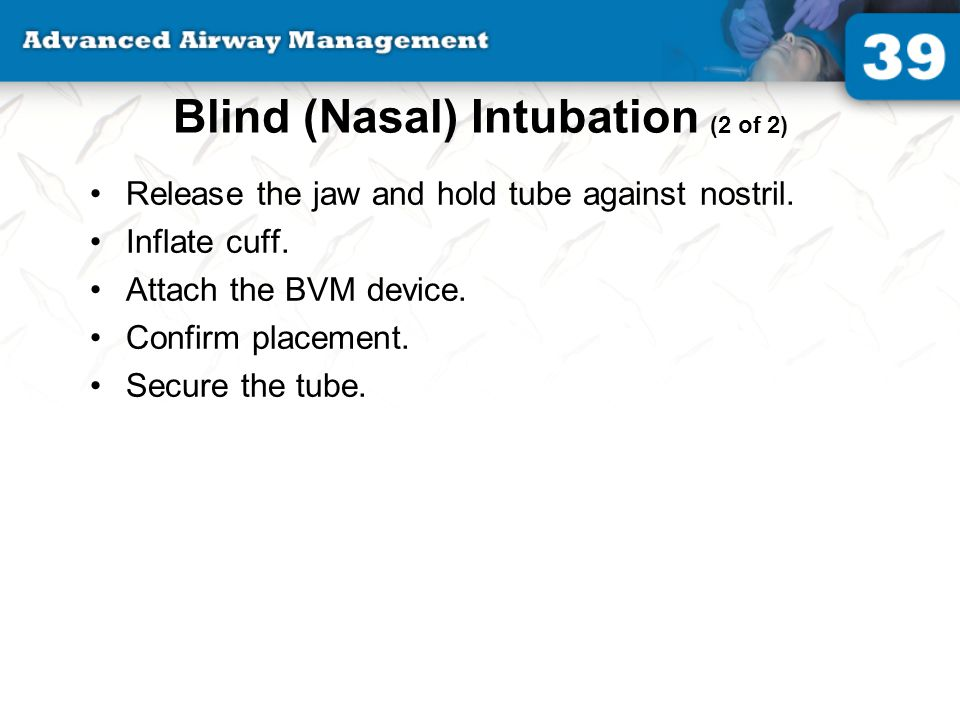 Blind (Nasal) Intubation (2 of 2)