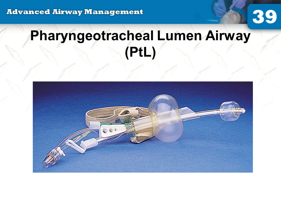 Pharyngeotracheal Lumen Airway (PtL)