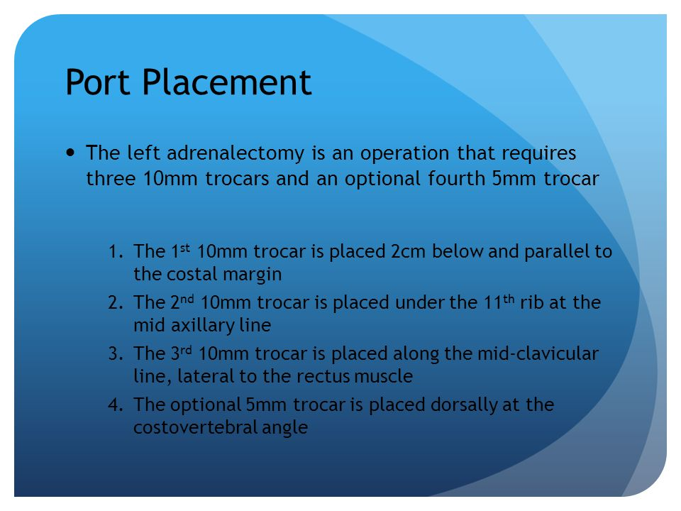 Port Placement The left adrenalectomy is an operation that requires three 10mm trocars and an optional fourth 5mm trocar.