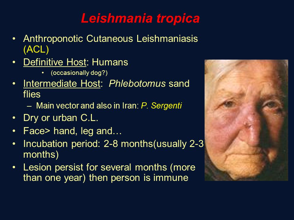 Leishmania tropica Anthroponotic Cutaneous Leishmaniasis (ACL)