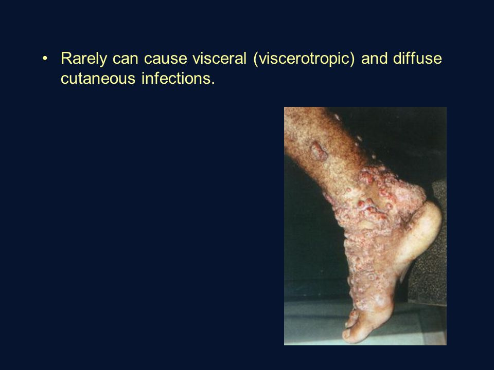 Rarely can cause visceral (viscerotropic) and diffuse cutaneous infections.