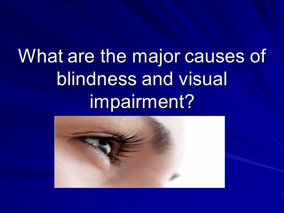 What are the major causes of blindness and visual impairment
