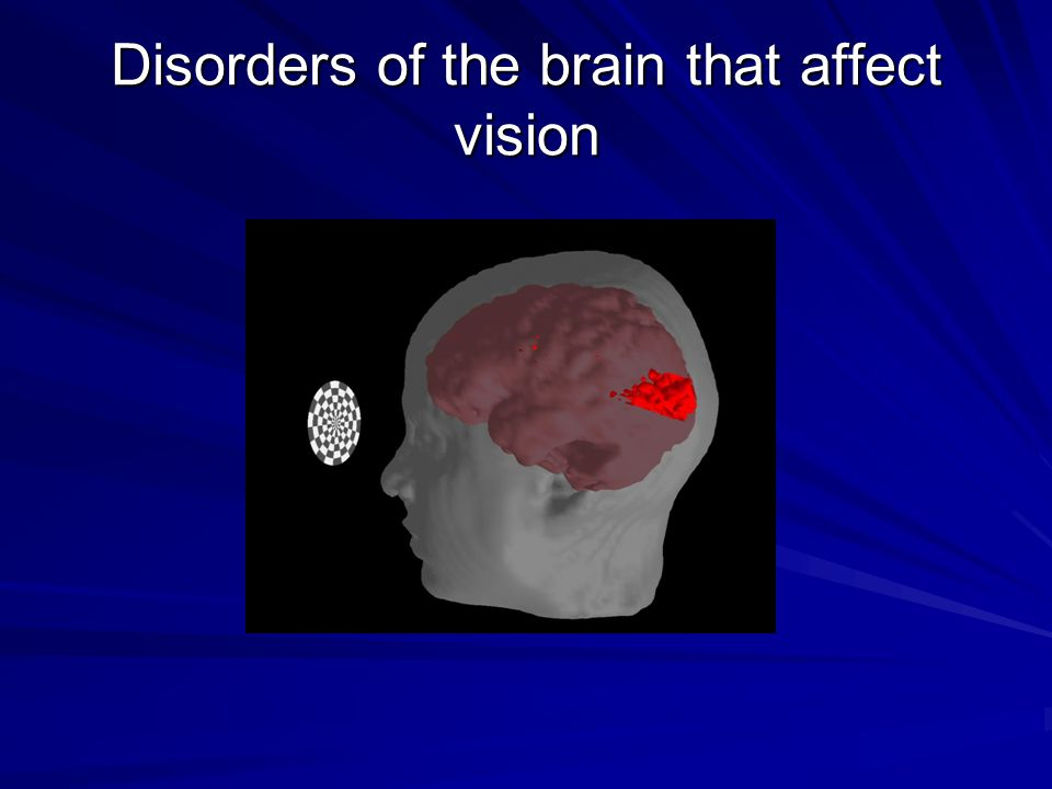 Disorders of the brain that affect vision
