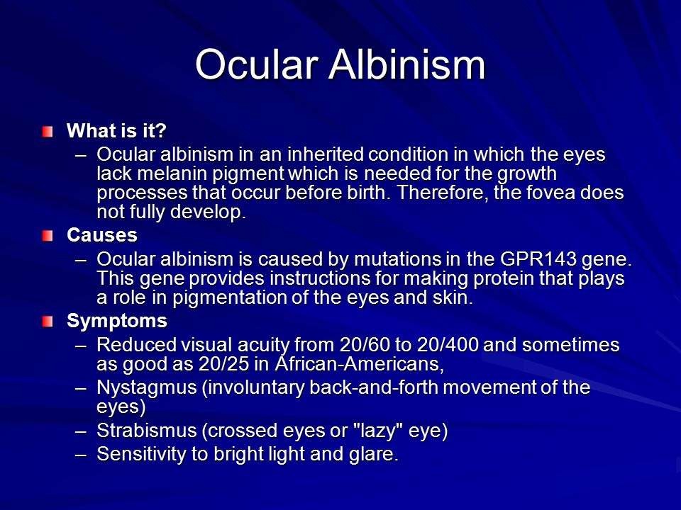 Ocular Albinism What is it