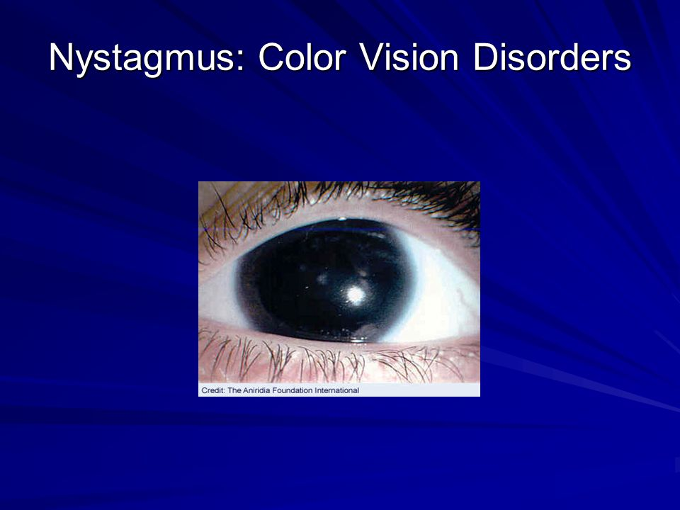 Nystagmus: Color Vision Disorders