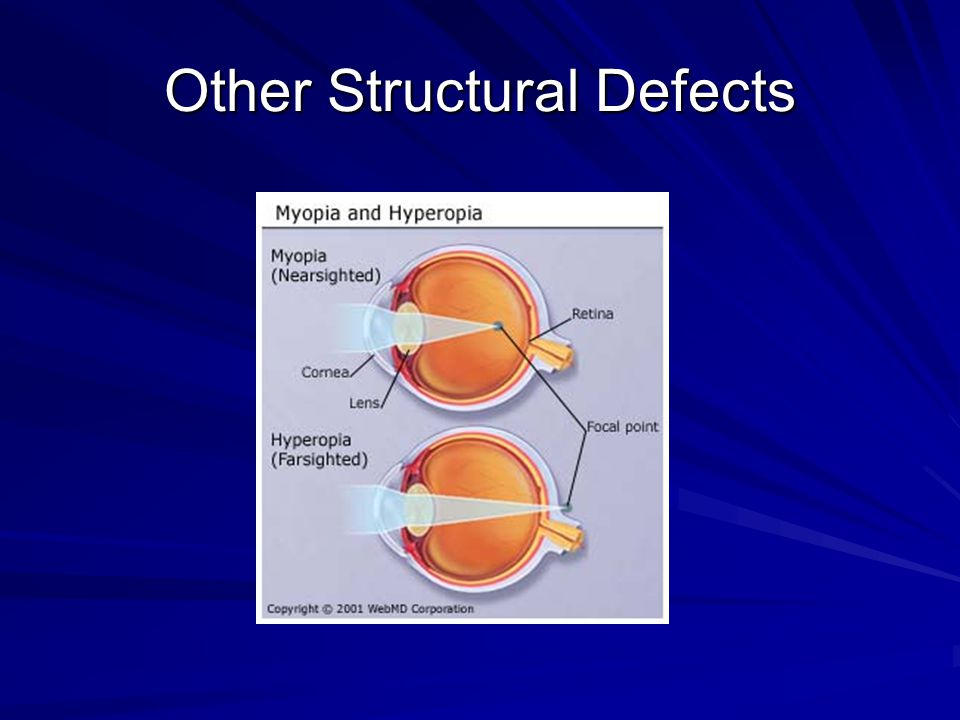 Other Structural Defects