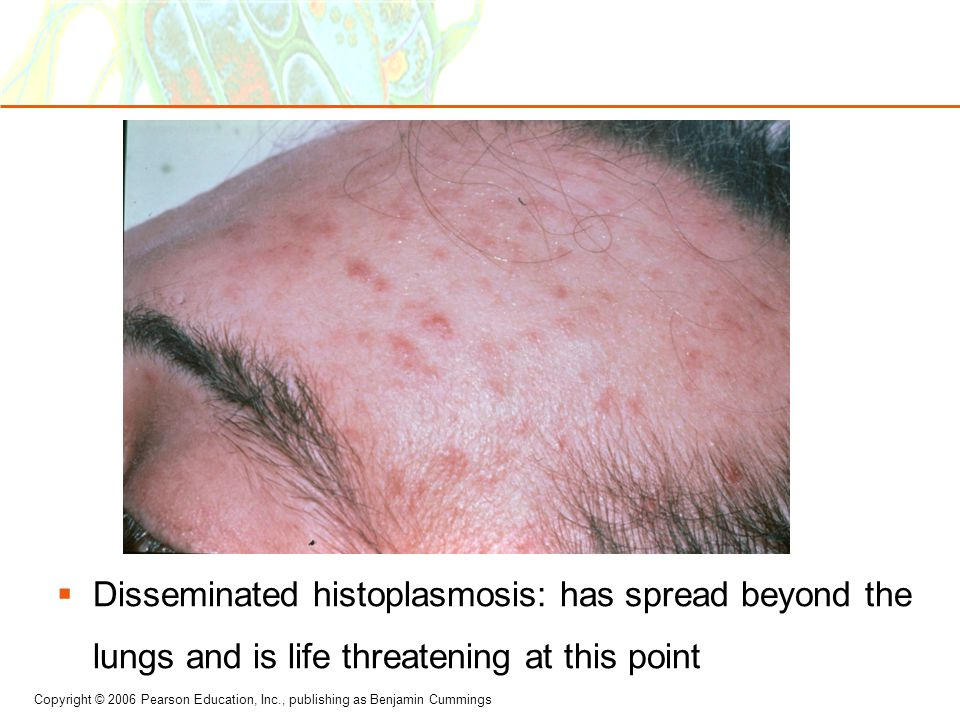 Disseminated histoplasmosis: has spread beyond the lungs and is life threatening at this point