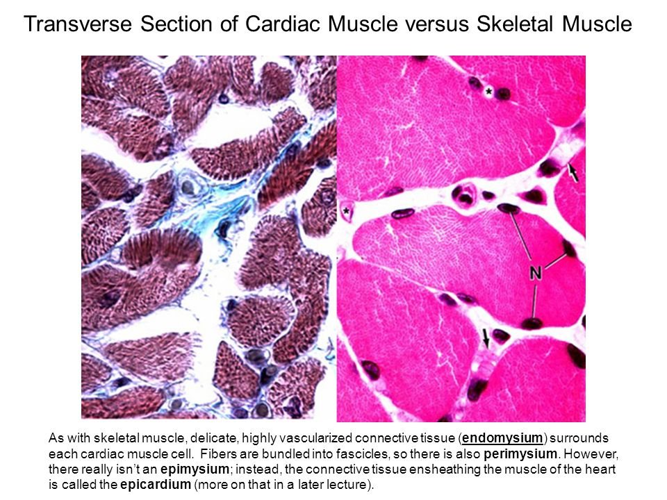Transverse Section of Cardiac Muscle versus Skeletal Muscle