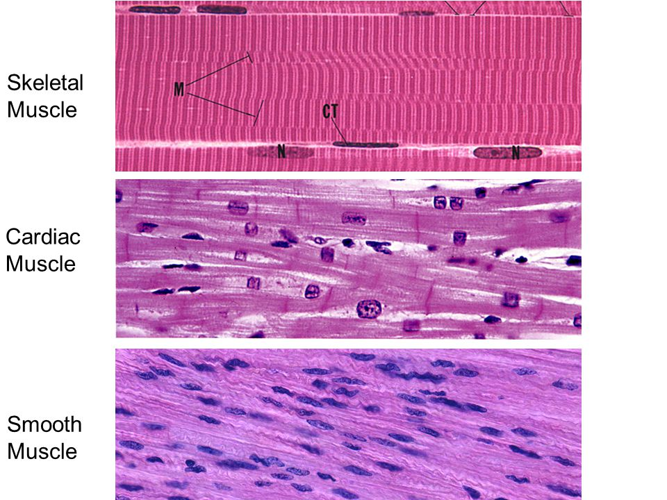 Skeletal Muscle Cardiac Muscle Smooth Muscle 28