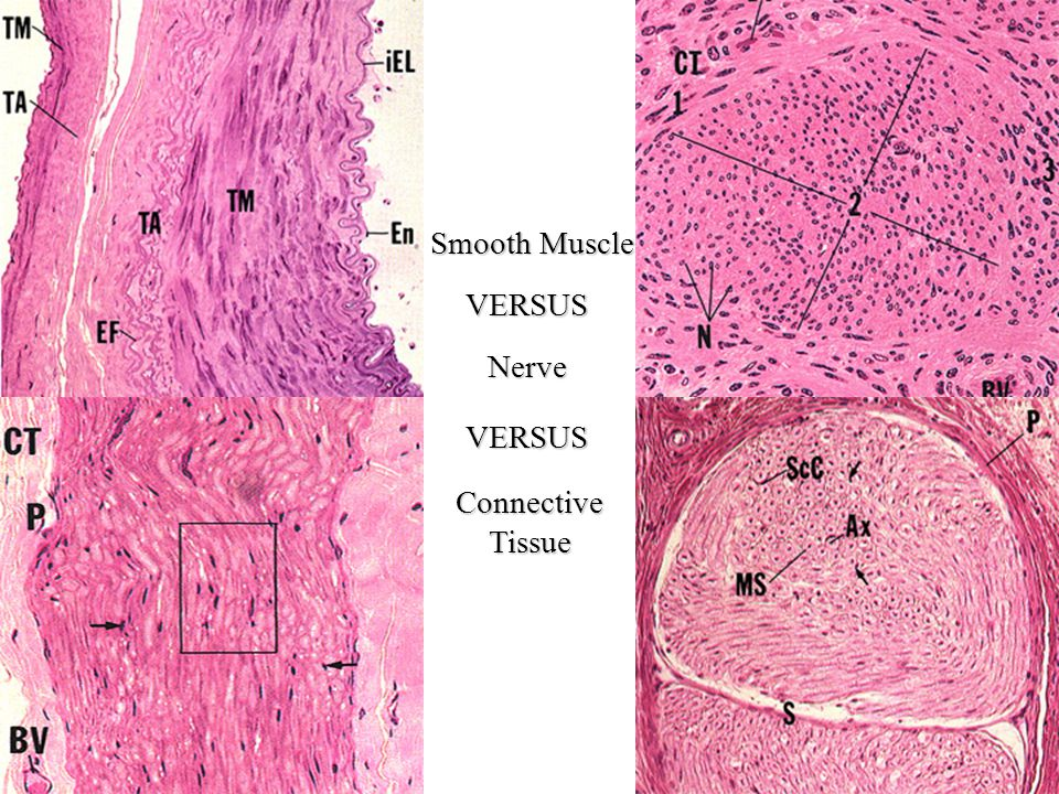 Smooth Muscle VERSUS Nerve VERSUS Connective Tissue