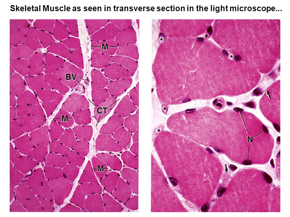 Skeletal Muscle as seen in transverse section in the light microscope...