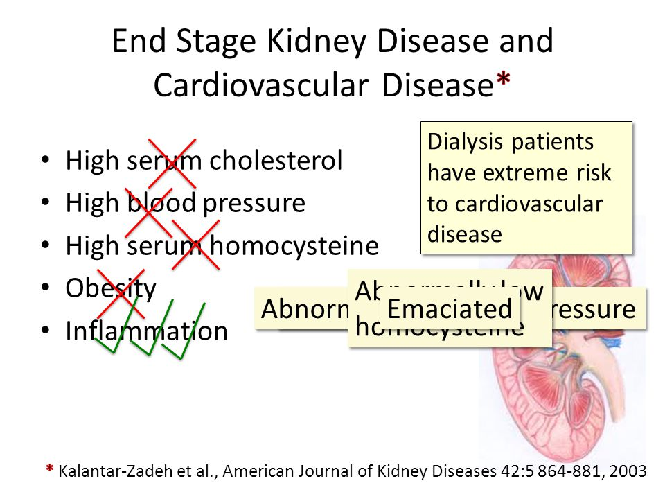 End Stage Kidney Disease and Cardiovascular Disease*