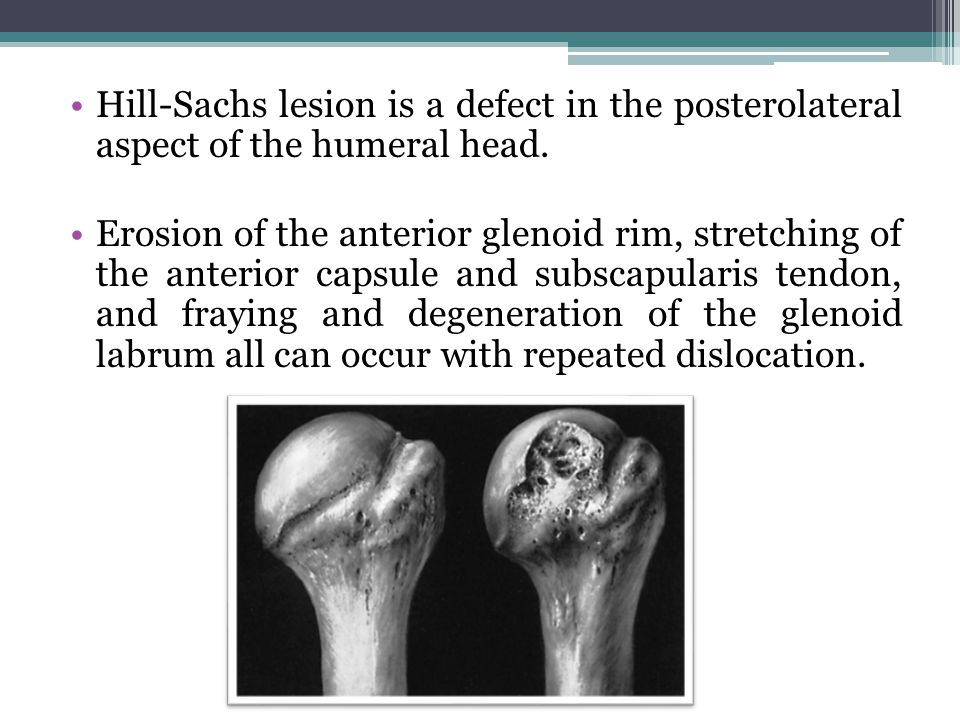 Hill-Sachs lesion is a defect in the posterolateral aspect of the humeral head.