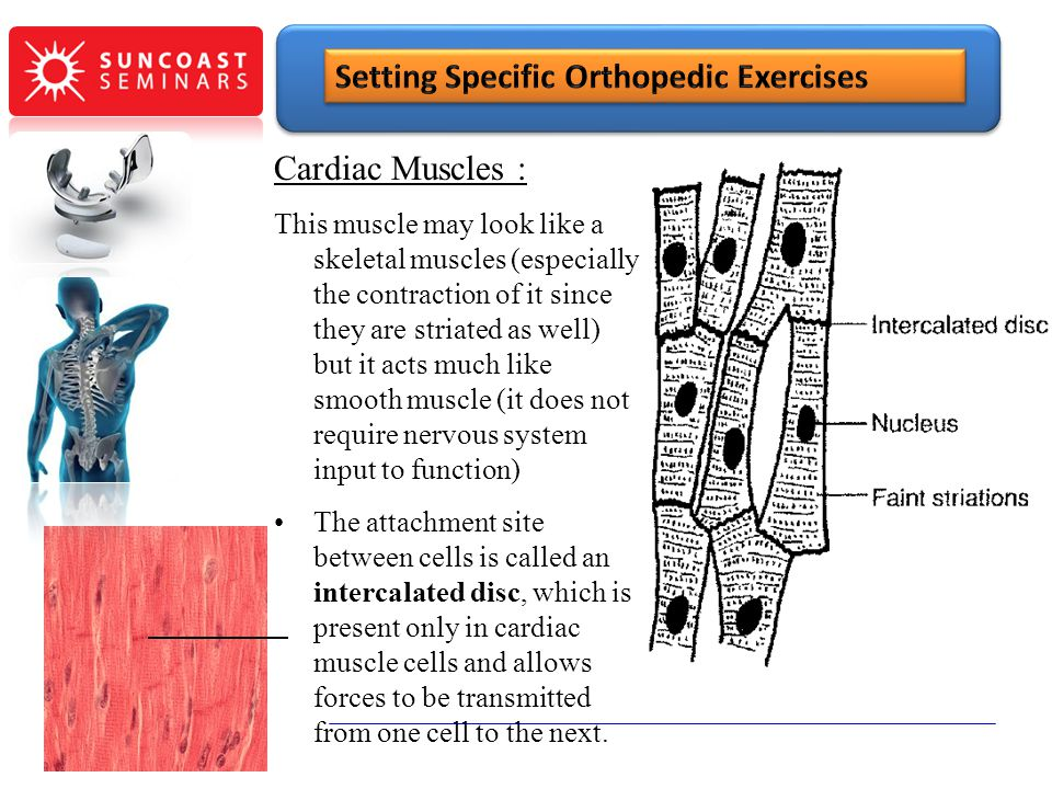 SunCoast Seminars Setting Specific Orthopedic Exercises