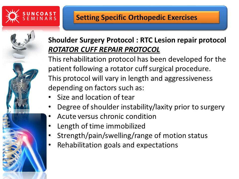 Setting Specific Orthopedic Exercises