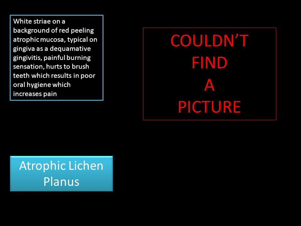 Atrophic Lichen Planus