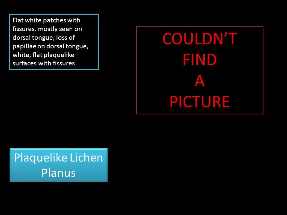Plaquelike Lichen Planus