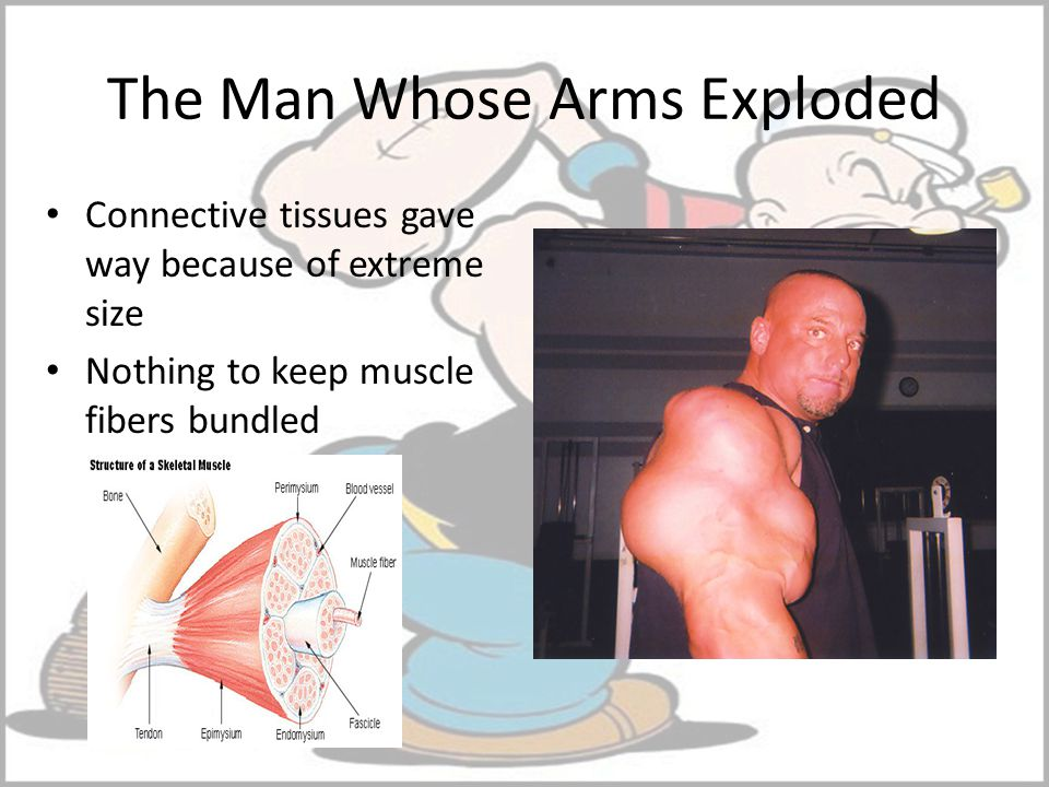 The Man Whose Arms Exploded