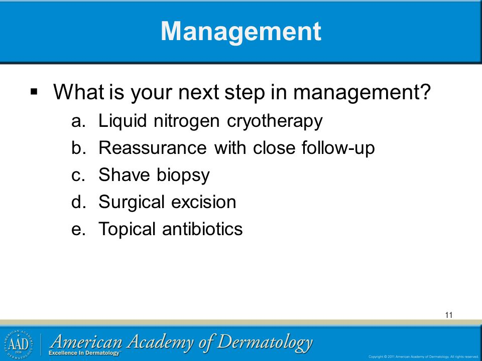 Management What is your next step in management