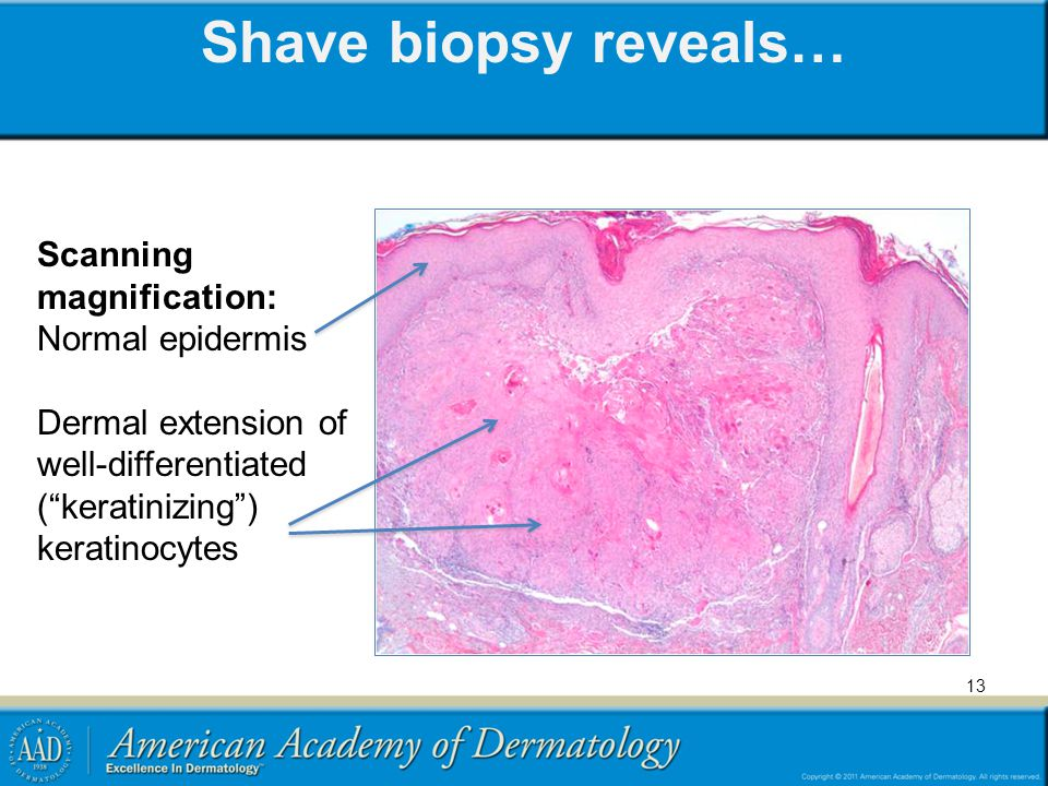 Shave biopsy reveals… Scanning magnification: Normal epidermis