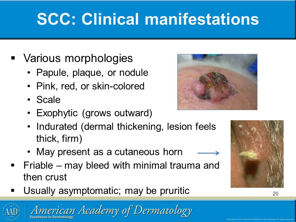 SCC: Clinical manifestations