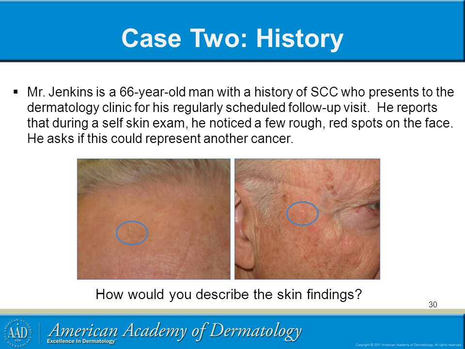 How would you describe the skin findings