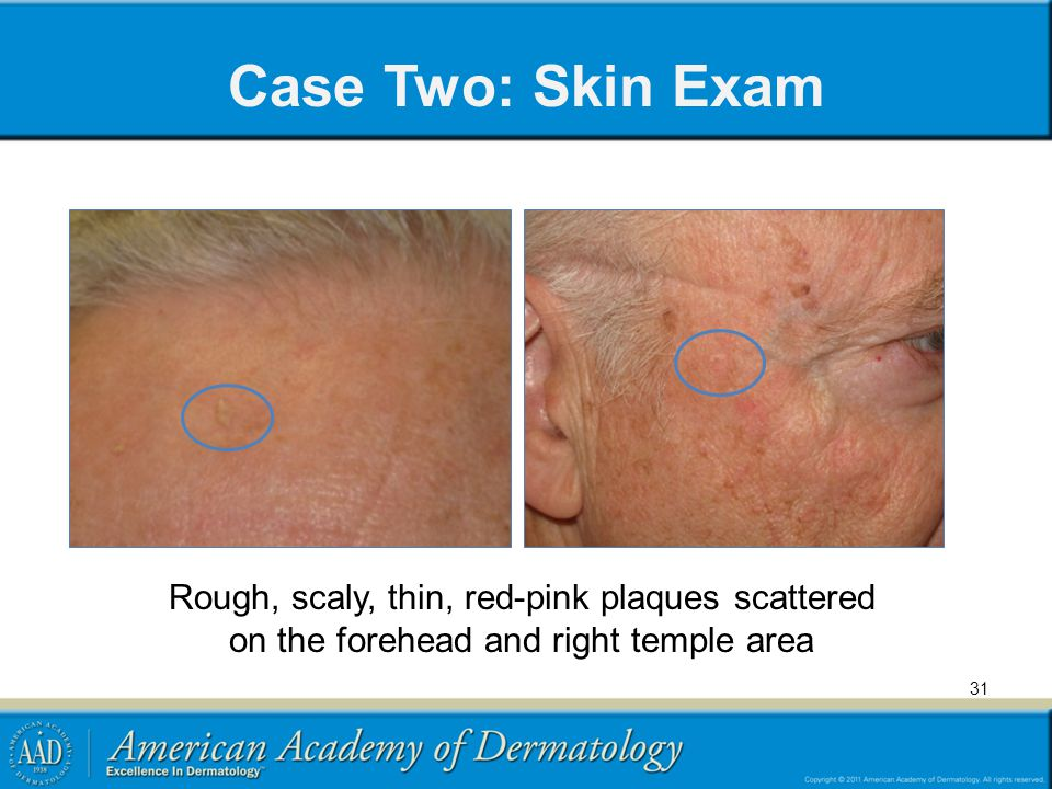 Case Two: Skin Exam Rough, scaly, thin, red-pink plaques scattered on the forehead and right temple area.