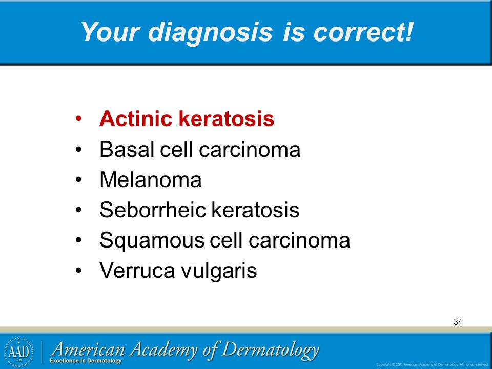 Your diagnosis is correct!