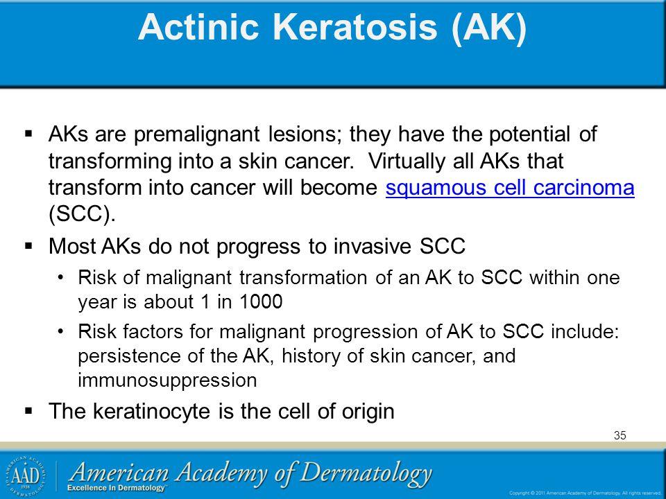 Actinic Keratosis (AK)