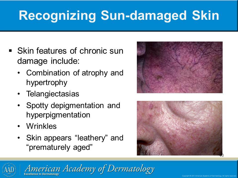 Recognizing Sun-damaged Skin