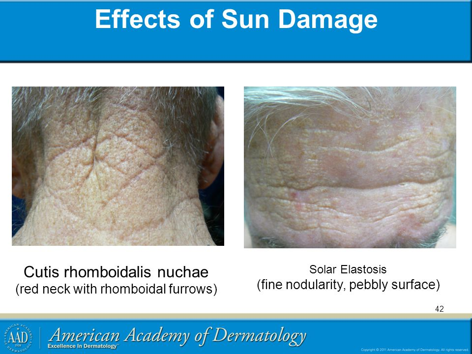Effects of Sun Damage Cutis rhomboidalis nuchae
