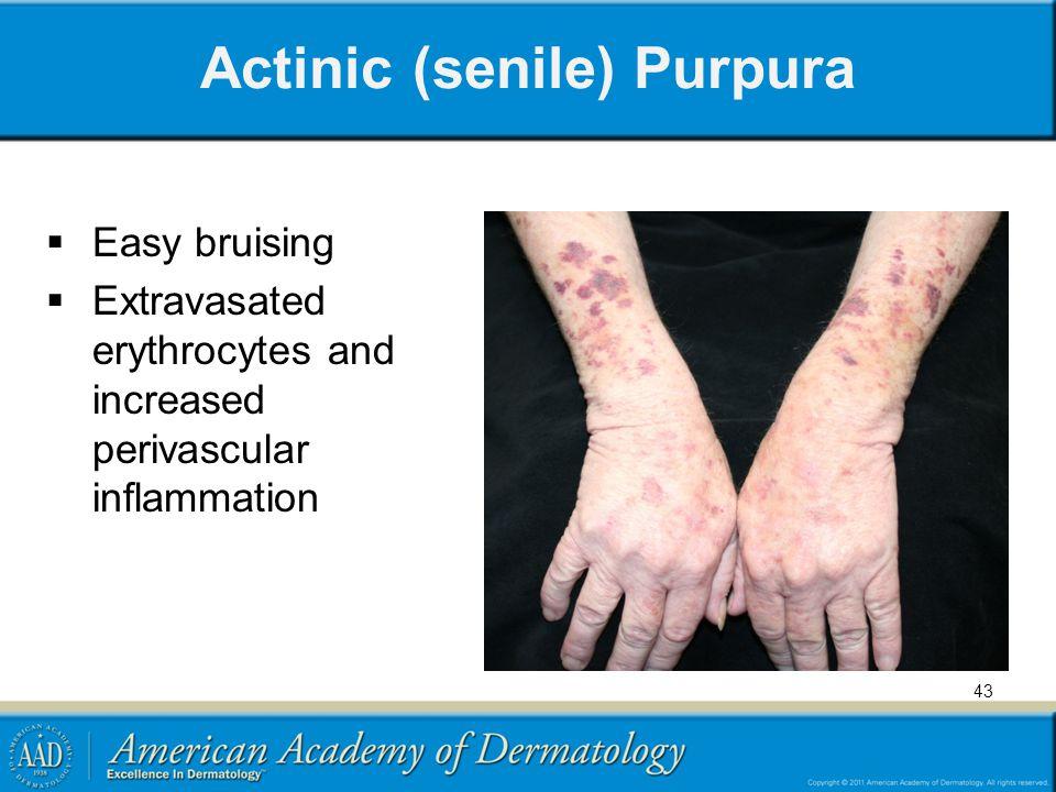 Actinic (senile) Purpura