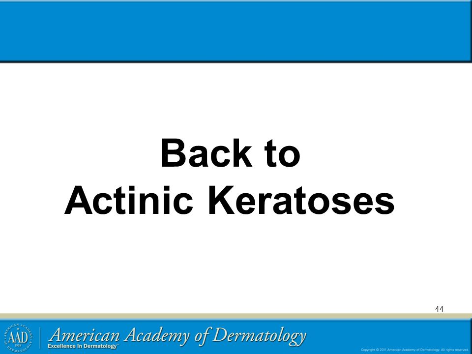 Back to Actinic Keratoses
